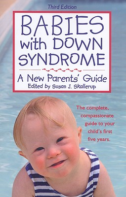 Babies With Down Syndrome By Skallerup, Susan J. (EDT)